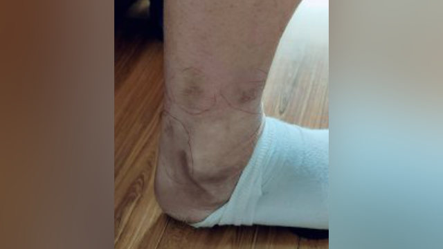 Scars left on Mr. Zhao's leg from torture with electric batons.