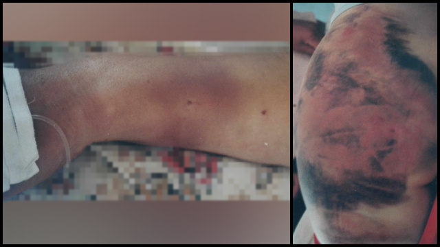 Li Yi was severely beaten during interrogation.